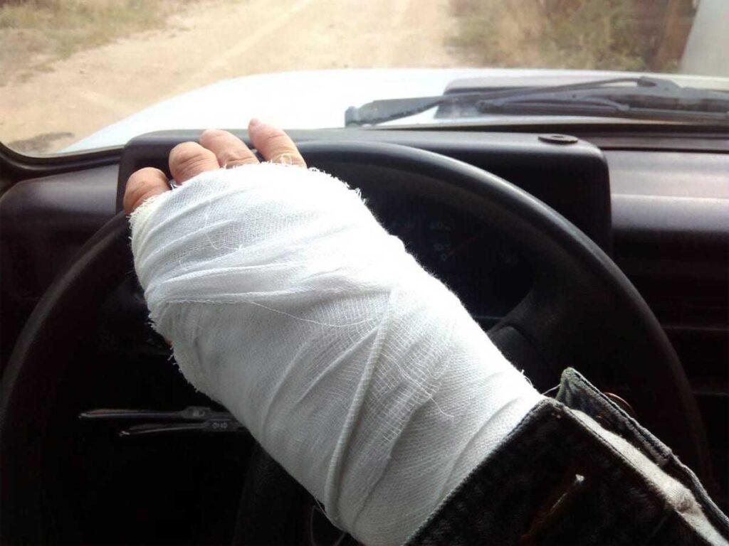 Можно ли водить автомобиль, если нога или рука сломаны и в гипсе?